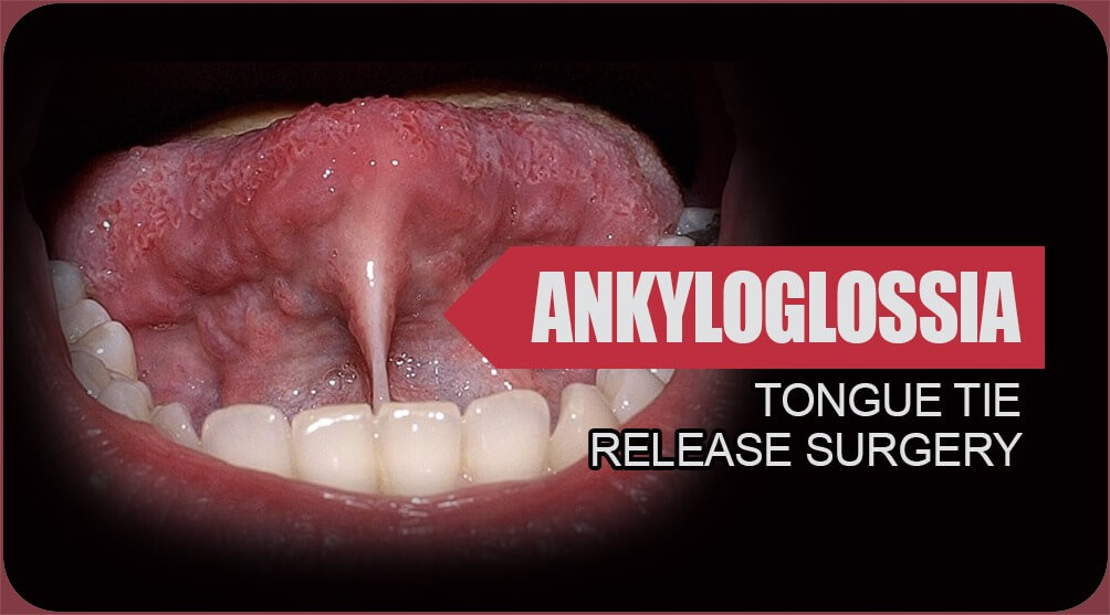 Ankyloglossia surgery in India