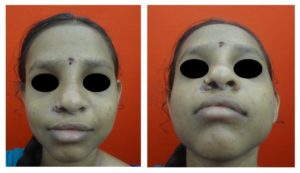 Nose Correction by RIB Graft