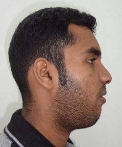 Anterior Maxillary Distraction Surgery in India