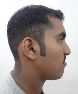 Anterior Maxillary Distraction Surgery in Nagercoil