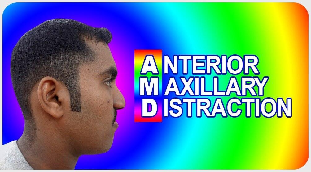 Anterior Maxillary Distraction treatment in India