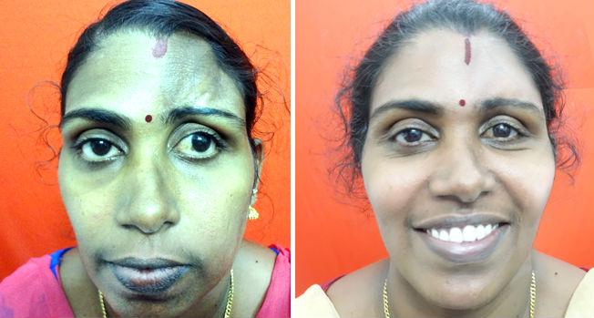Asymmetric facial surgery in India
