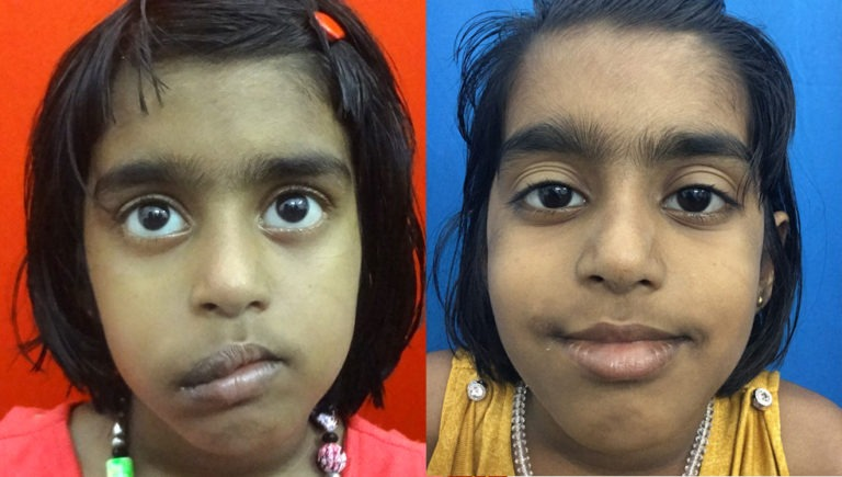 before and after hemangioma