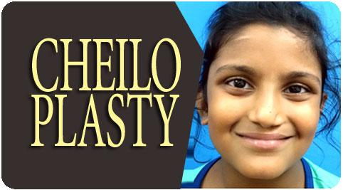Cheiloplasty Surgeon in India
