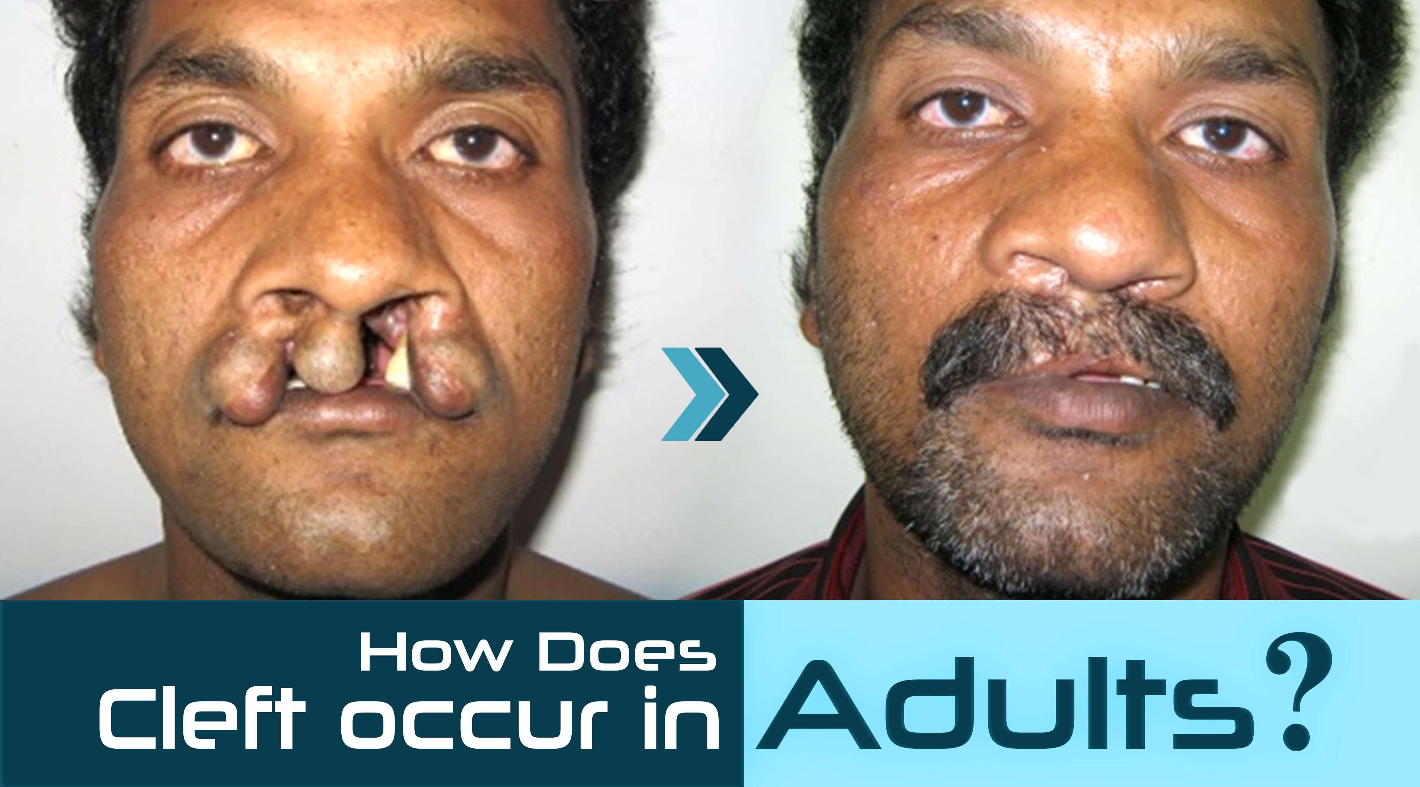 Cleft occur in adults