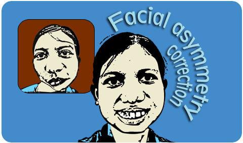 Facial asymmetry correction surgeon in India