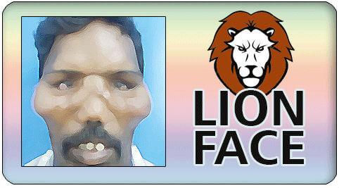 Facial esthetic surgery in India