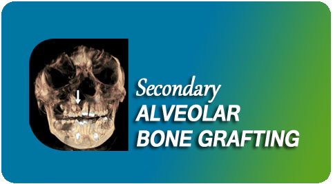 Secondary alveolar bone grafting Surgery India
