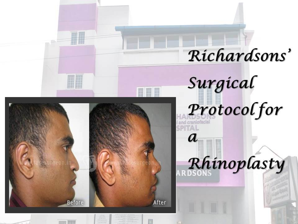 Surgical Protocol for a Rhinoplasty