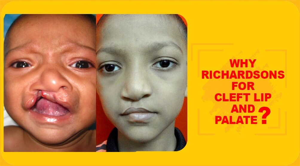 Why Richardsons for cleft lip and palate