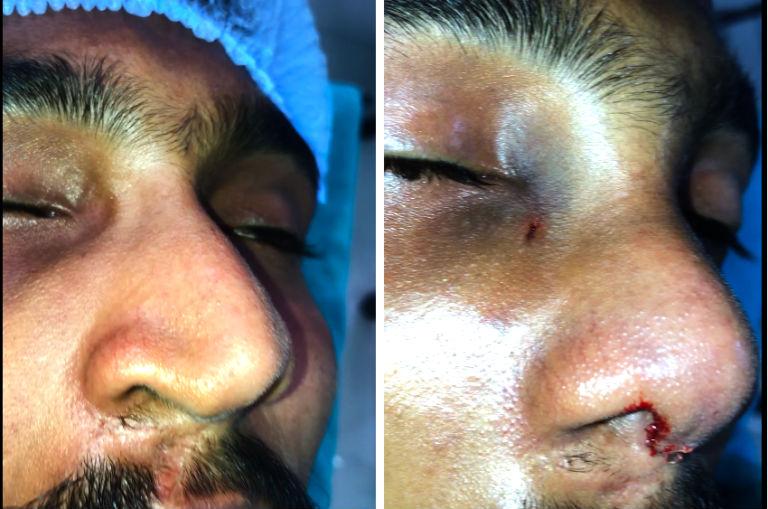 asymmetric nose correction surgeon in India