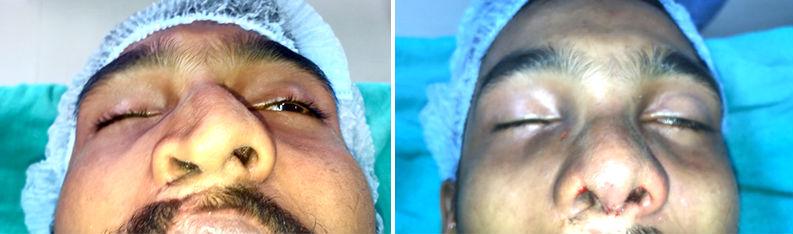 asymmetric nose correction surgery in India