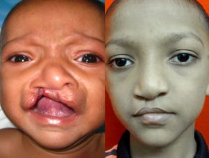 After and Before cleft palate Surgery in India