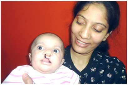 cleft lip surgery india