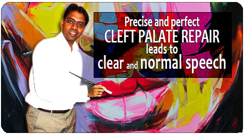 cleft-palate-repair treatment in India