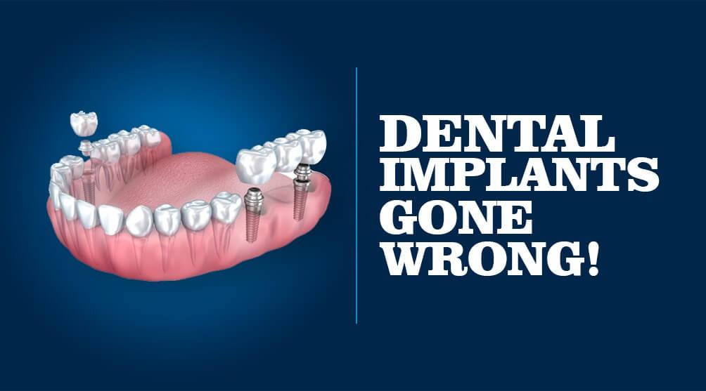 dental implants gone wrong