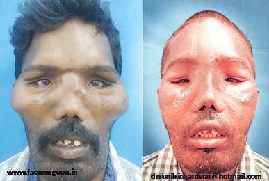 fibrous dysplasia treatment in India