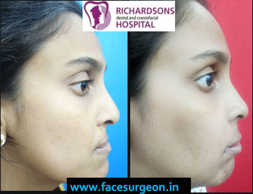 lip revision surgery at Richardsons dental and craniofacial Hospital