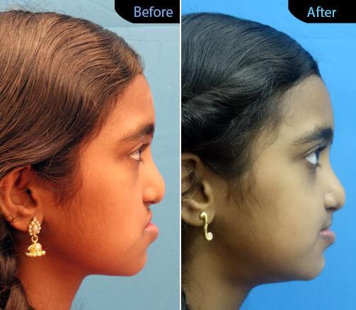 sunken midface correction Surgery in India