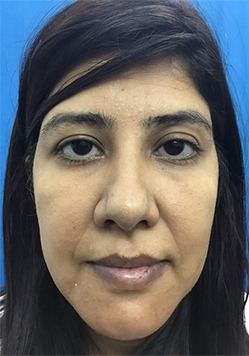 After Genioplasty Treatment in India
