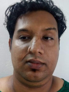 After Scar removal treatment in India