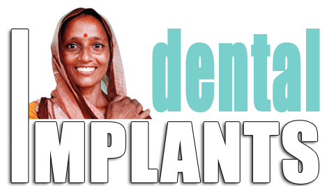 Artificial Tooth Implants in India