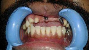 Before Dental Implants Treatment in Nagercoil