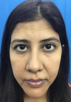 Before Genioplasty Treatment in India