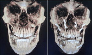CBCT image of Orthognathic surgery
