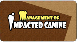 Canine tooth implant