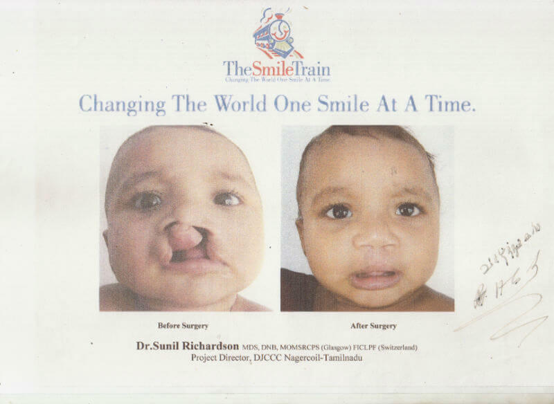 Certificate - The Smile Train, Nagercoil