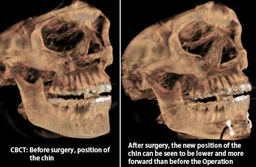 Chin surgery in Nagercoil
