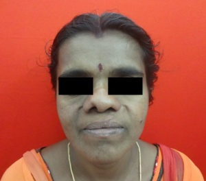 Cleft Correction Surgery in India