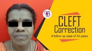 Cleft Correction Surgery in Tamil Nadu