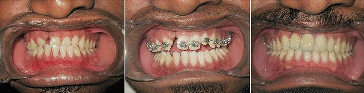 Cleft Orthodontics