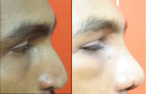 Cleft Rhinoplasty in India