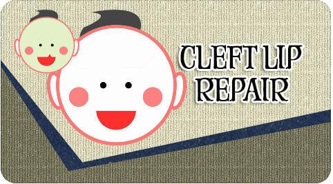 Cleft lip repair surgery in Tamil Nadu