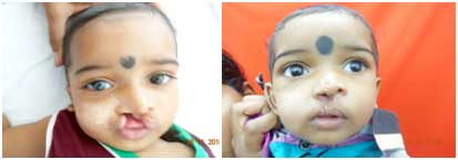 Cleft lip surgery for baby