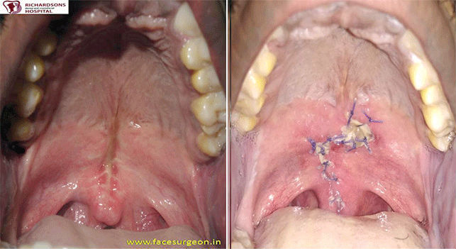 Cleft palate repair Surgery in India