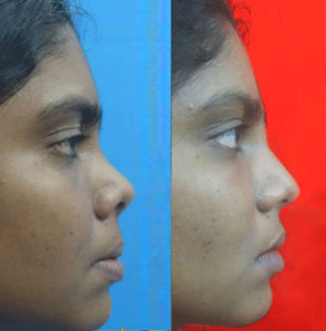 Corrective Nose Surgery in Nagercoil