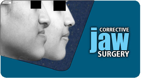 Corrective jaw surgery in Tamil Nadu