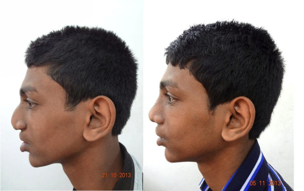 Cosmetic Nasal Surgery Before and After