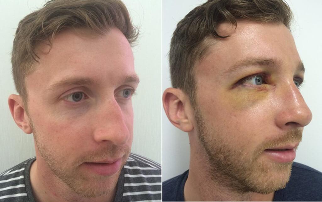 Cosmetic Nasal Surgery treatment