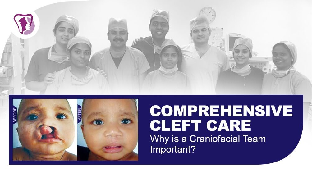Craniofacial surgery in Nagercoil