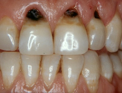 toothache treatment in nagercoil
