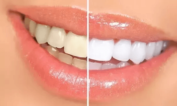 Dental Bleaching Treatment in Nagercoil