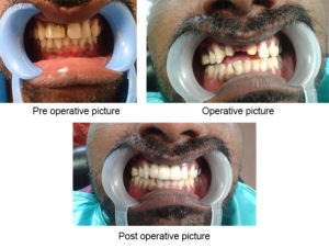 Dental Bridge Implants