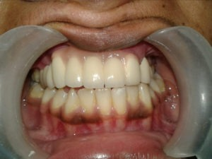 Dental Rehabilitation After Treatment in India