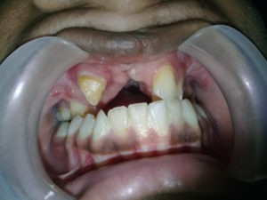Dental Rehabilitation Before Treatment in India