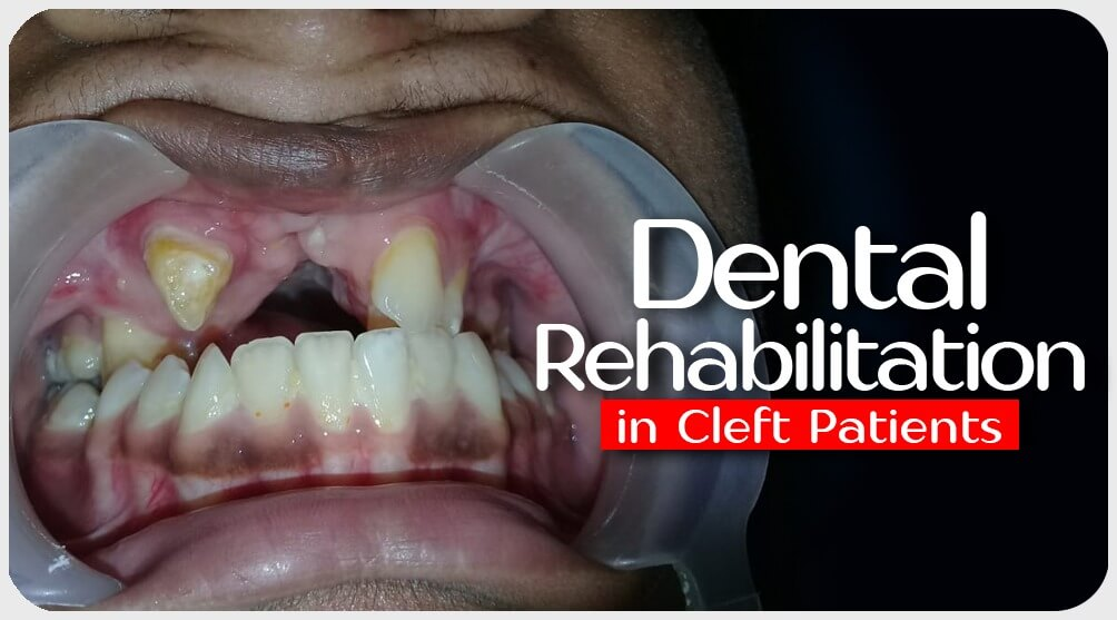 Dental Rehabilitation in India